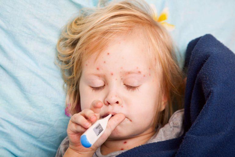 Criança com sintomas de Sarampo