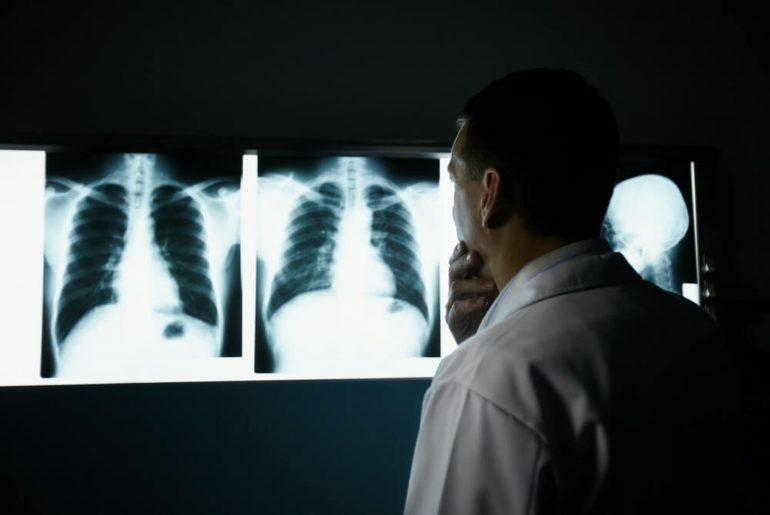 Pneumologista analisando Raio X