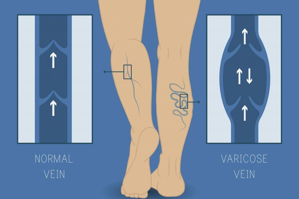 """Na imagem, uma perna com as veias em destaque. De uma lado está escrito """"normal vein"""" e do outro """"varicose vein""""."""
