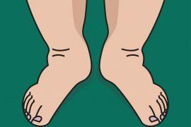 Pernas inchadas incomodam e podem causar dor. Mas você já descobriu o motivo para que as suas fiquem assim?