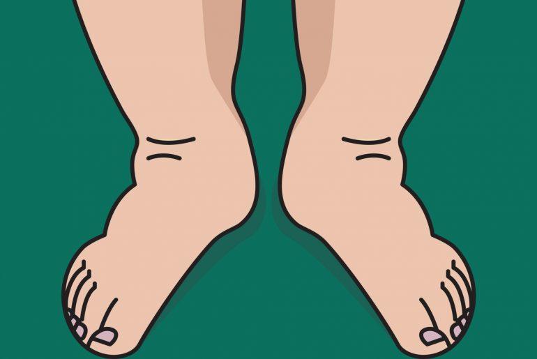 Na imagem, pernas e pés inchados são mostrados em primeiro plano.
