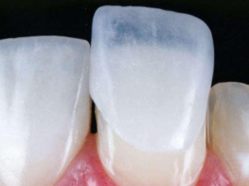 Fixação das lentes de contato dentárias para problemas de oclusão e mastigação.