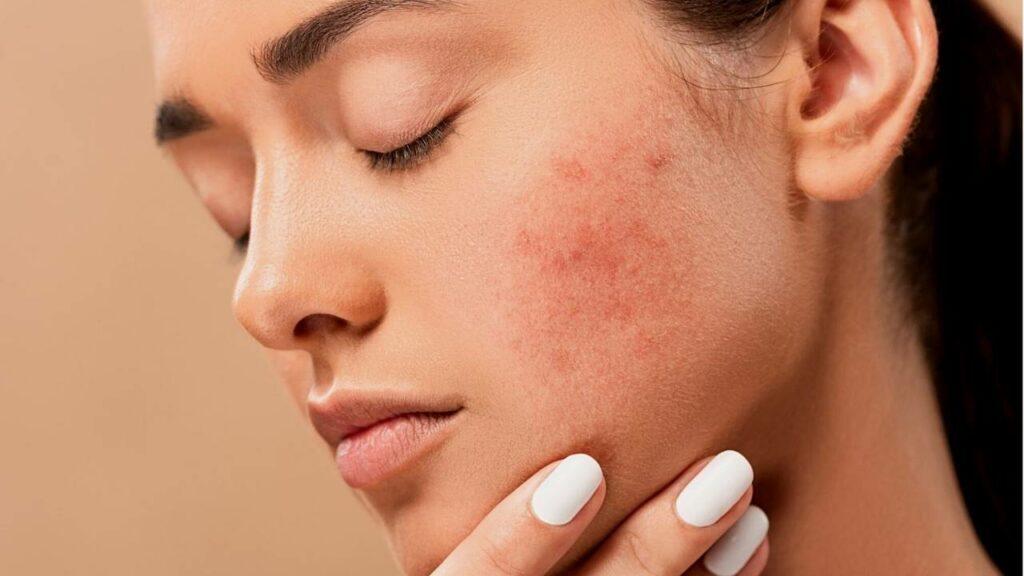 Mulher com a mão no rosto com cicatrizes de acne.